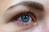 One Female Eye With Red Protein From Allergic Conjunctivitis. poster