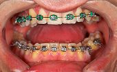 picture of overbite  - Picture of a dental brace examination at a clinic - JPG