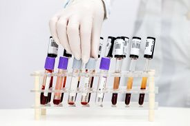 stock photo of tubes  - Stand with test tubes with blood - JPG