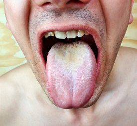 foto of syphilis  - Disease infection  candida tongue throat a man - JPG
