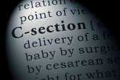 Fake Dictionary, Dictionary Definition Of The Word C-section. Including Key Descriptive Words. poster