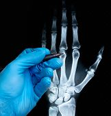 X-ray Of Human Hand With Doctors Hand In Glove poster