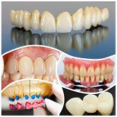 picture of emax  - A collage made of photos of modern dental products and solutions vastly used on social media - JPG