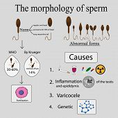 picture of artificial insemination  - Infographics sperm morphology - JPG