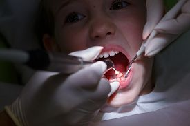 picture of prophylactic  - Little girl at paediatric dentists office getting her teeth polished with prophylactic paste by her dentist - JPG