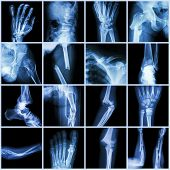 Постер, плакат: Collection X ray Multiple Bone Fracture finger spine wrist hip leg clavicle ankle elbow arm foot
