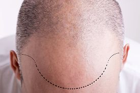 pic of male pattern baldness  - Top view of a men - JPG