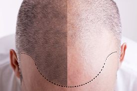 picture of male pattern baldness  - Top view of a men - JPG