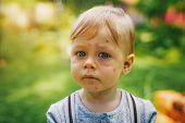 One year unhappy child with allergy and insect bites on face. Portrait in summer garden. poster