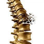 Постер, плакат: Spine Fracture