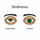 stock photo of squinting  - Diseases of the eye  - JPG