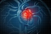 Heart Attack Pain As A Human Cardiovascular Organ With A Painful Cardiac Inflamation With 3d Illustr poster