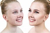 Comparison Portrait Of Young Woman Before And After Retouch. poster