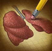 stock photo of bronchus  - Losing human lungs health and a decline in respiratory function caused by cancer or disease as a pencil eraser erasing an old grunge medical illustration on parchment paper - JPG