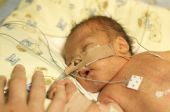 picture of premature  - Premature baby boy delivered by Caesarean section in Neo Natal Intensive Care Ward at Hospital - JPG