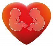 pic of twin baby girls  - Twins in a red glowing heart - JPG