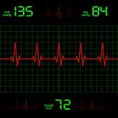 stock photo of ecg chart  - illustration displays the line of heart on Blood Pressure - JPG