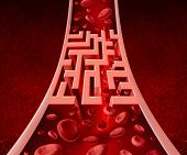 picture of cell block  - Blood circultation problems and blocked arteries health care concept with a human artery that has a blockage shaped as a maze or labyrinth as a metaphor for the medical challenges of poor blood cell flow and circulatory illness - JPG