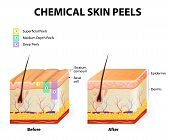 ������, ������: Chemical Peels