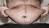 picture of obese man  - Obesity - close up view of man
