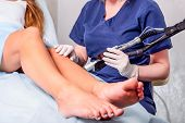 Close Up Laser Hair Removal In The Beauty Salon. Woman Having Legs Epilation. Selective Focus poster