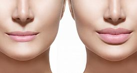 picture of big lips  - Before and after lip filler injections - JPG