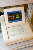 foto of obstetrics  - monitor for measuring of labor contractions - JPG