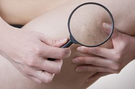 picture of varicose  - Varicose veins close up under a magnifying glass - JPG