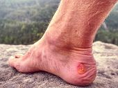 Naked Foot With Painful Heel Wound In Nature. Man Feet Caused By New Shoes. Cracked Terrible Blister poster
