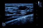 Colourful Image Of Modern Ultrasound Monitor. Ultrasonography Machine. High Technology Medical And H poster