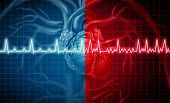 Atrial Fibrillation And Normal Or Abnormal Heart Rate Rythm Concept As A Cardiac Disorder As A Human poster