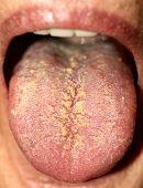 Thrush On The Tongue. Geographic Tongue. Candidiasis. poster