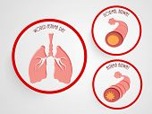 picture of asthma  - World Asthma Day concept with illustration of asthmatic bronchitis on grey background - JPG