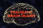 Traumatic Injury Of Human Brain, 3d Illustration. Conceptual Image Showing The Brain And Traumatic B poster