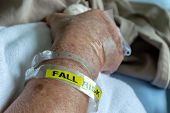 A Patient Wearing A Fall Risk Bracelet In Hotspital.(selective Focus) poster