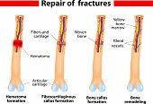 stock photo of hematoma  - Fracture and repair - JPG