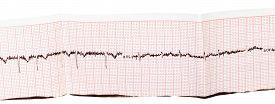 foto of ekg  - electrocardiogram  - JPG