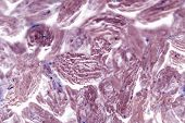 Mammary Cancer. Cancer Cells Under A Microscope. Tissues Affected By Cancer Cells Under A Microscope poster