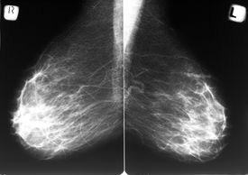 stock photo of mammography  - Mammogram films of both breasts of a female patient - JPG