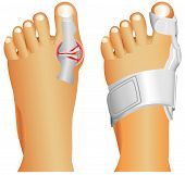 stock photo of big-foot  - Big toe injury - JPG