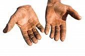 pic of callus  - Worker is showing his chapped hands dirty and injured palms against white background - JPG