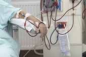 image of dialysis  - patient helped during dialysis session in hospital - JPG
