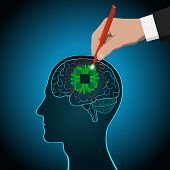 Restoration Of Brain Functions, Prosthetics Of Affected Areas, Mind, Consciousness, Memory, Surgical poster
