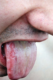 stock photo of syphilis  - Bacterial infection disease tongue in a young man - JPG