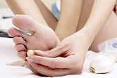 Woman Using Garlic As Herbal Medicine For A Verruca On Her Foot Or Plantar Ward poster