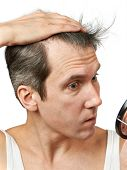 stock photo of alopecia  - Man with mirror looking at his hair on white background - JPG