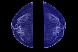 picture of mammogram  - Lateral mammogram of female breast - JPG