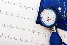 stock photo of ekg  - ekg and blood pressure measurement stuff for health living - JPG