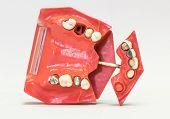 image of dentures  - Dental phantom dentures isolated on white background - JPG