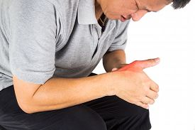 stock photo of gout  - Man with painful and inflamed gout on his hand around the thumb area - JPG